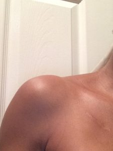 Mel scar